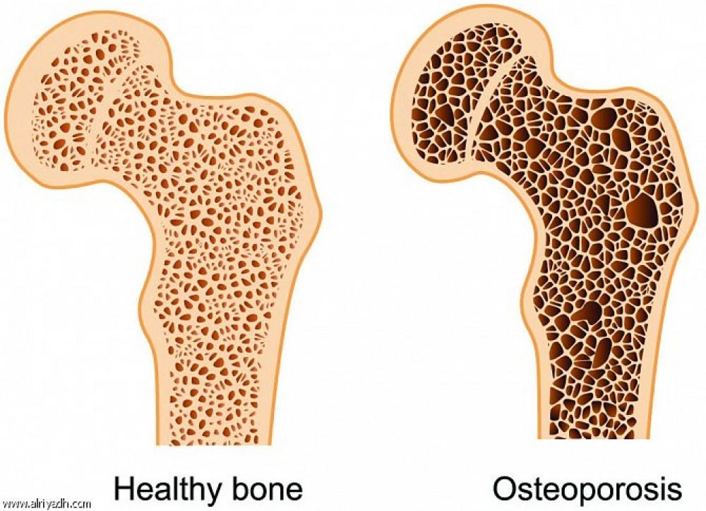 سؤال وجواب عن هشاشة العظام مع الدكتور سمير الحلبي موقع بالمختصر